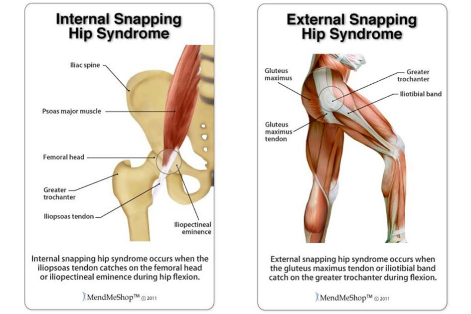 medically known as hip flexor tendinopathy snapping hip syndrome comes can be painful or non painful non painful does not require treatment